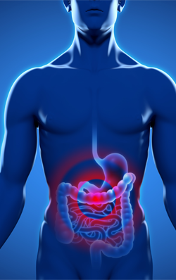 irritable-bowel-syndrome-introduction