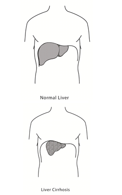 common-causes-of-liver-cirrhosis